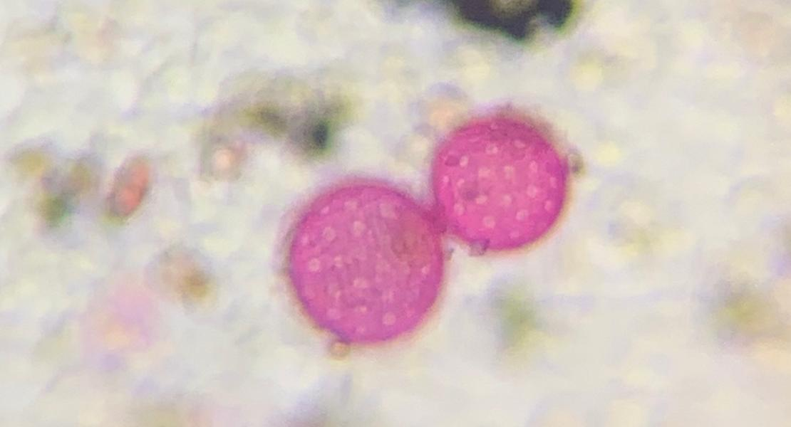 Chenopod weed pollen.